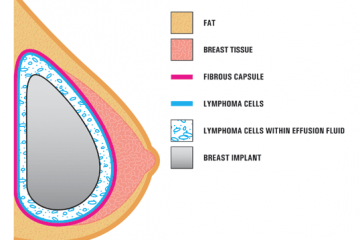 Breast Implant Associated Lymphoma Cropped